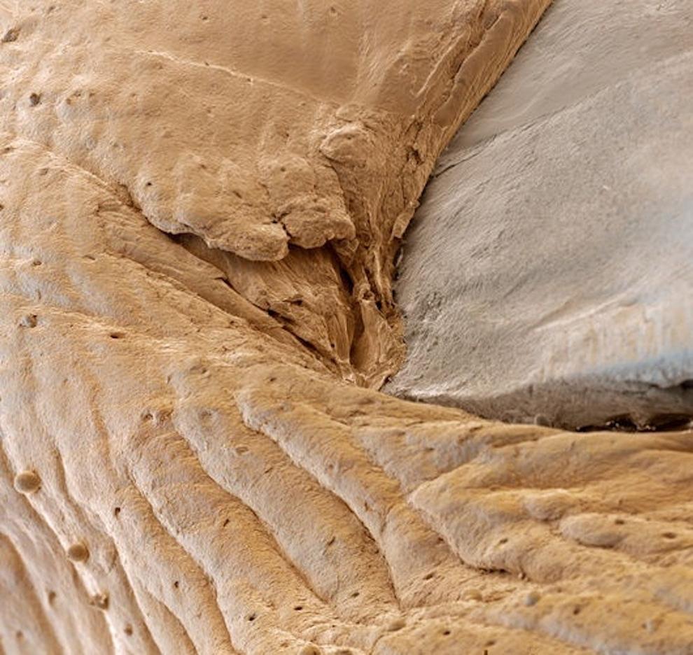 Cuticle under the microscope