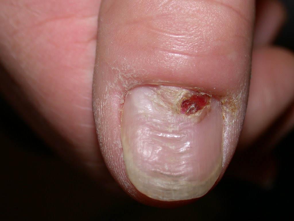 Матрикс ногтя: описание, строение и причины повреждения