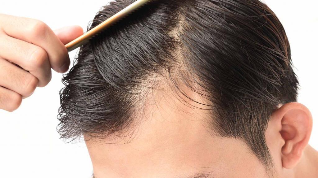 От чего лучше растут волосы