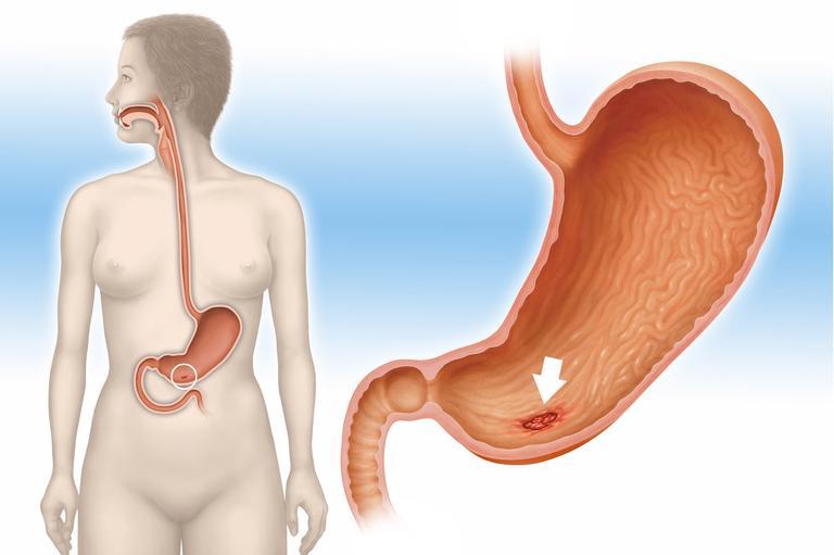 Можно ли вылечить язву желудка? Лечение традиционными и народными средствами