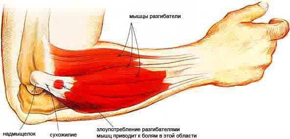Болезненность локтевой мышцы