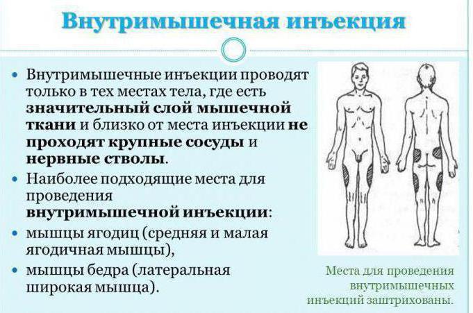 Осложнения внутримышечных инъекций