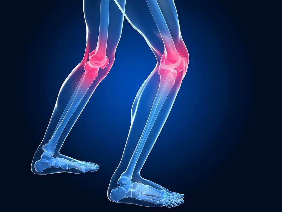 Артротомия коленного сустава
