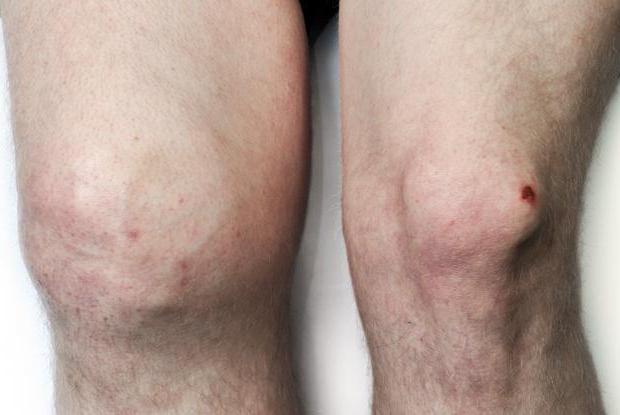 остеоартрит коленного сустава лечение