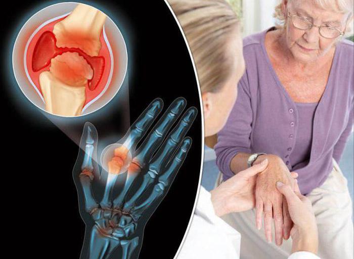 остеоартрит диагностика
