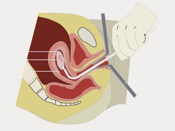 Можно ли беременеть после биопсии