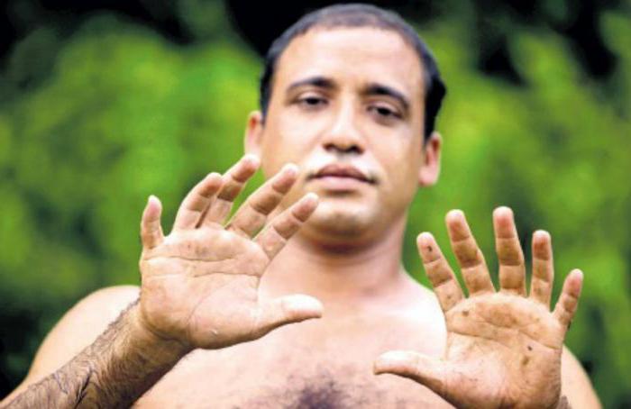 Аномалия развития конечностей: что делать, если у ребенка шесть пальцев на руках или ногах