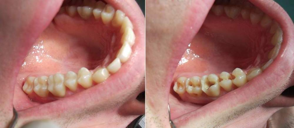 treatment of secondary caries