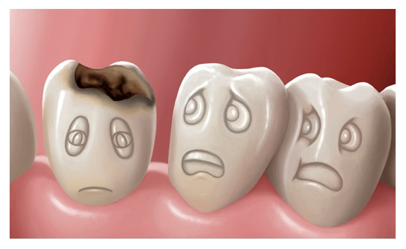 stages of treatment of secondary caries