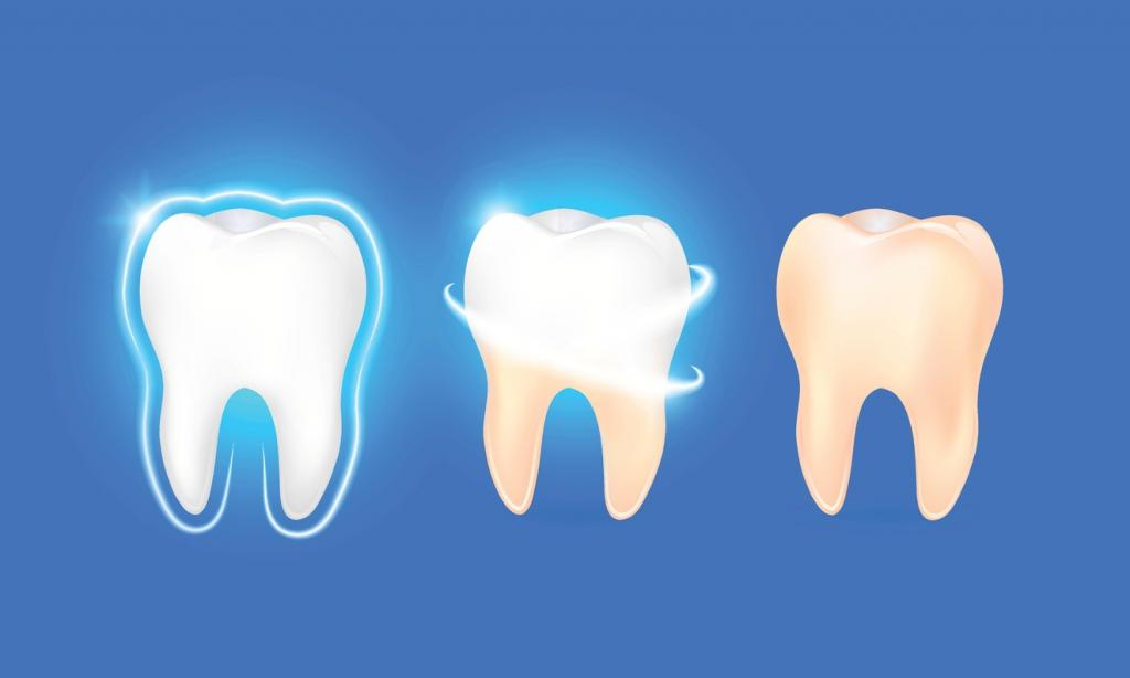 treatment of superficial and secondary caries