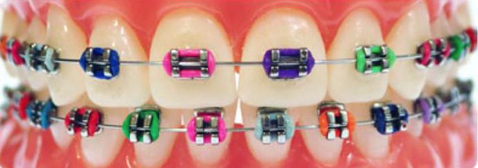 ортодонтические услуги стоматологии
