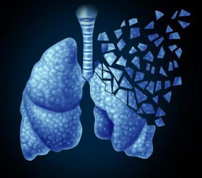 параканкрозная пневмония симптомы