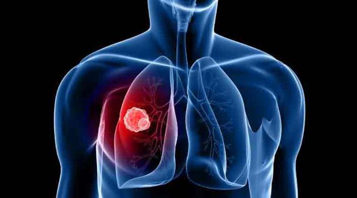 параканкрозная пневмония причины