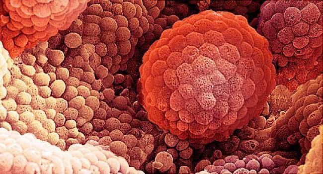 ], рак предстательной железы 3 степени продолжительность жизни
