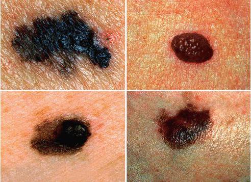 меланома кожи прогнозы жизни 4 стадия фото