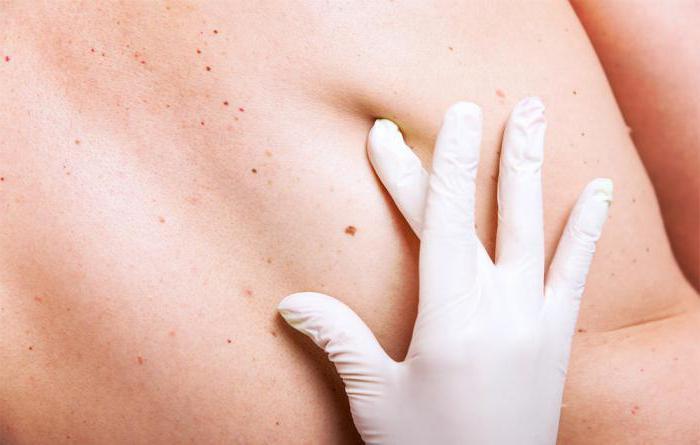 меланома кожи прогнозы жизни после операции
