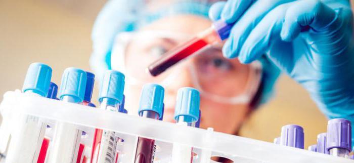 сдача биохимического анализа крови подготовка
