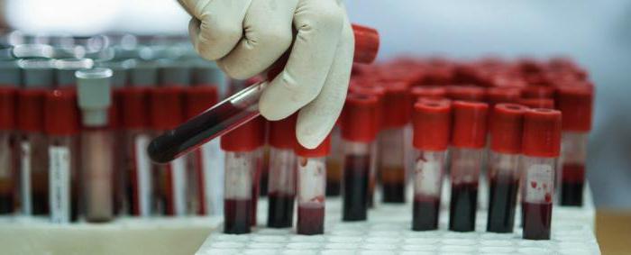 как проходит подготовка к биохимии сдача крови