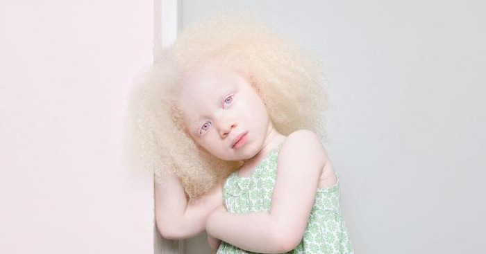 синдром чедиака хигаси лечение