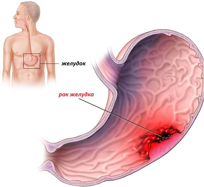 Рак желудка 4 степени: лечение, прогноз жизни