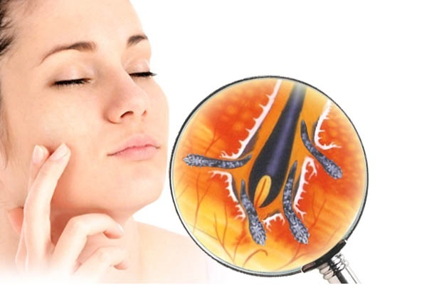 подкожный клещ на лице симптомы и лечение