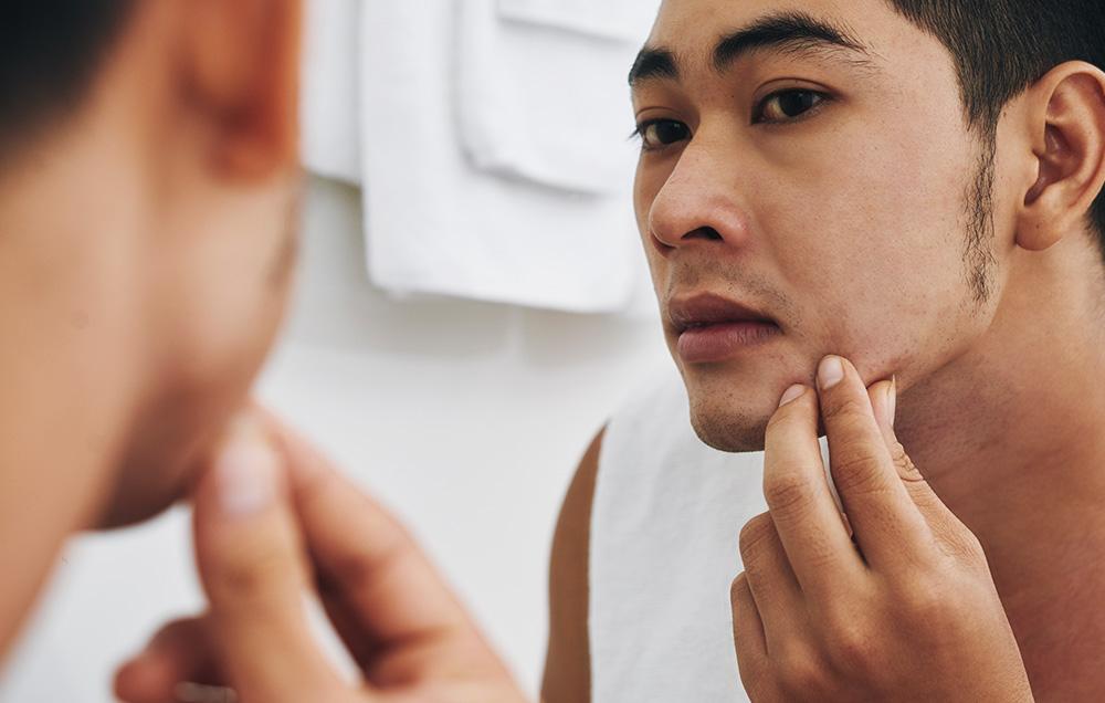 подкожный клещ на лице фото симптомы