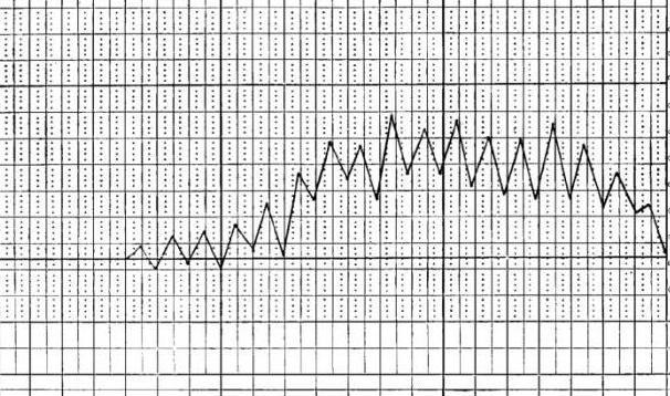 типы температурных кривых при лихорадке