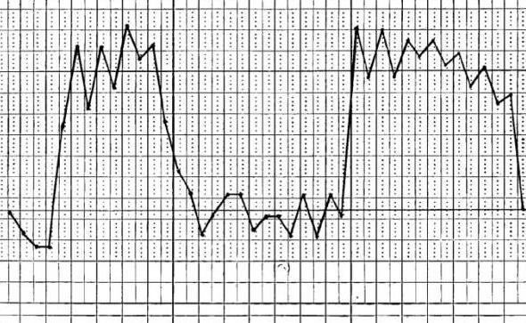 основные типы температурных кривых