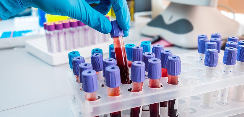 где сдать анализ гликированный гемоглобин