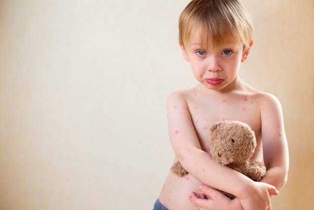 какие антибиотики дают при ветрянке детям