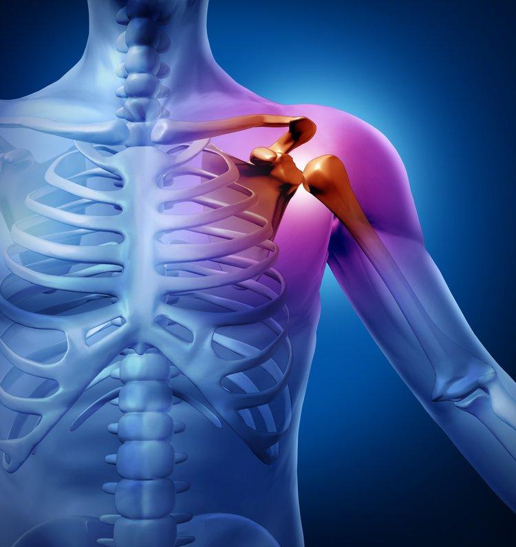 закрытый перелом хирургической шейки плечевой кости