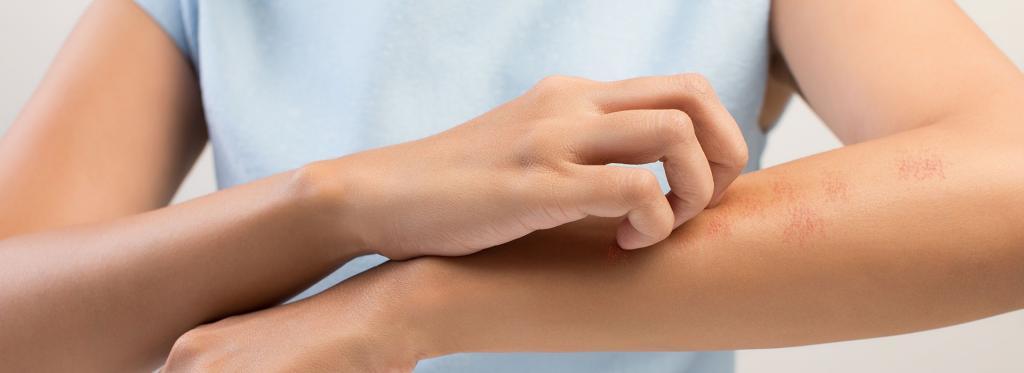 """""""Дипроспан"""" при псориазе: отзывы врачей и больных, показания, инструкция по применению"""