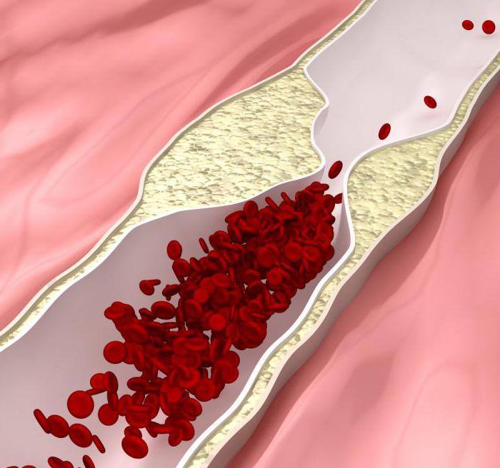 симптомы при повышенном холестерине у мужчин