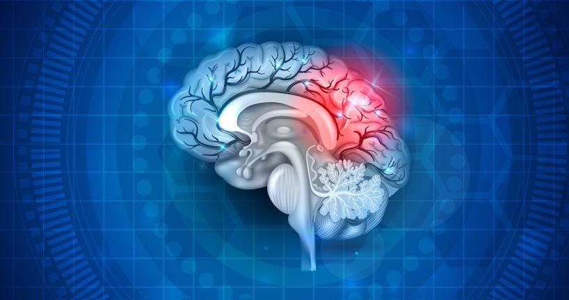 легкая степень сотрясения головного мозга симптомы