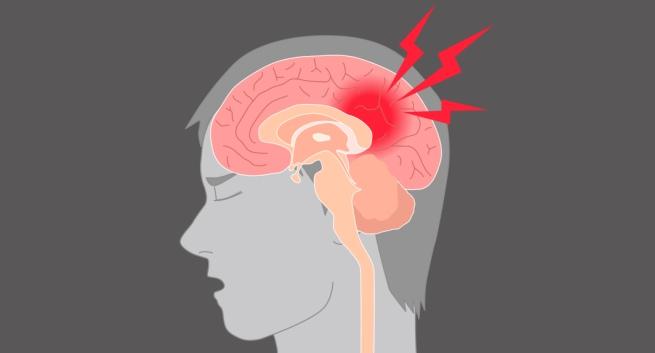 сотрясение головного мозга степень тяжести вреда здоровью