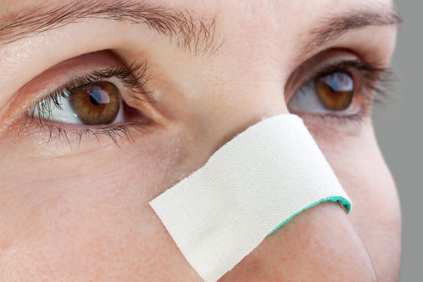 как лечить чирей у ребенка на носу