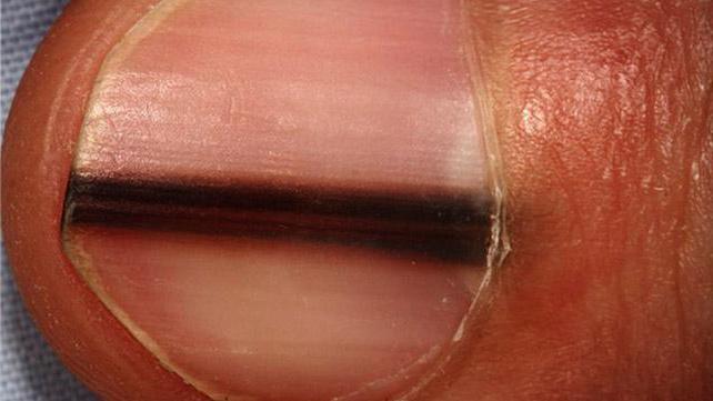 Меланома ногтя причины возникновения thumbnail