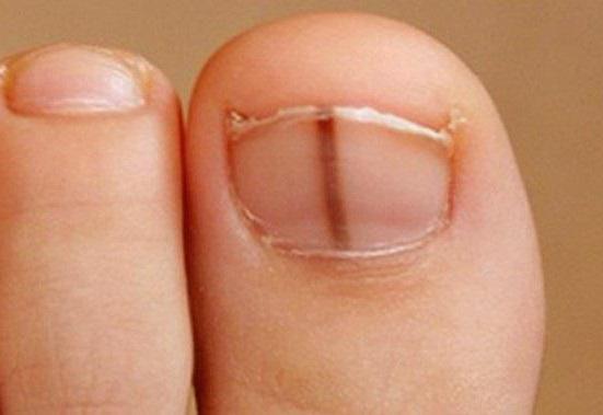 волнистые ногти причина фото