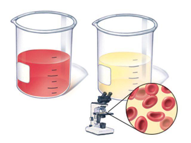 Bld ca 200 ery ul анализ мочи что это означает анализ крови на беременность где сдать