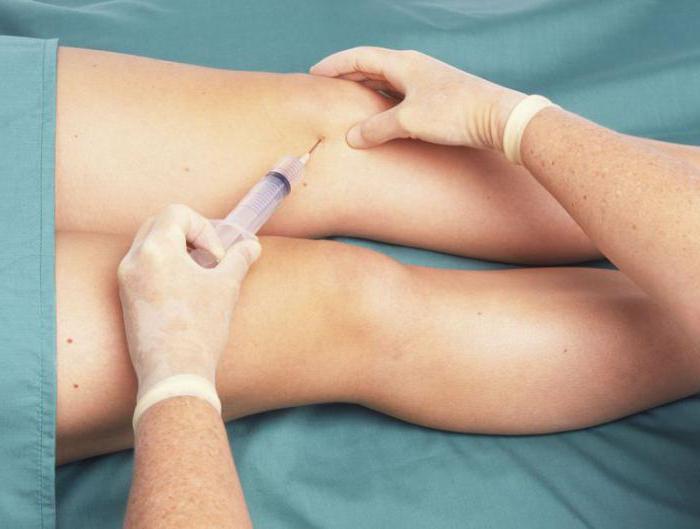 Prp терапия коленного сустава отзывы восстановление после эндопротезирования тазобедренного сустава дома