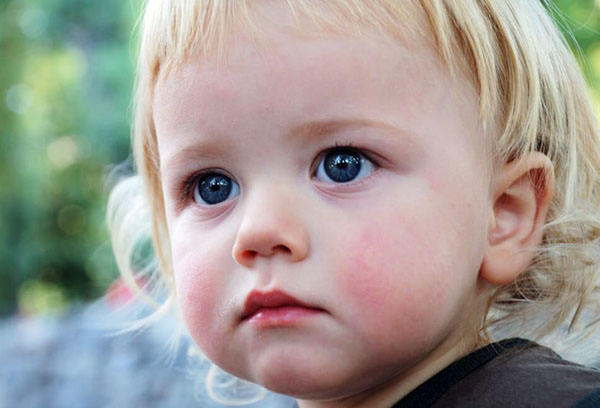 сосудистая звездочка на лице у ребенка