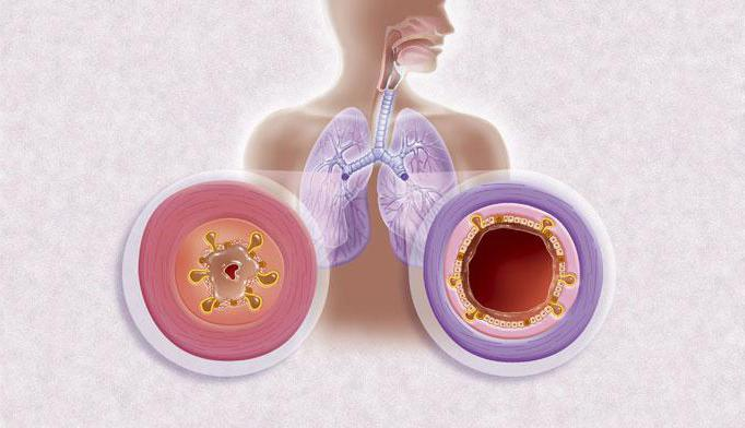 лечение вирусной инфекции с поносом