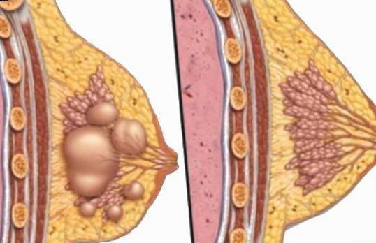 Мастопатия - лечение