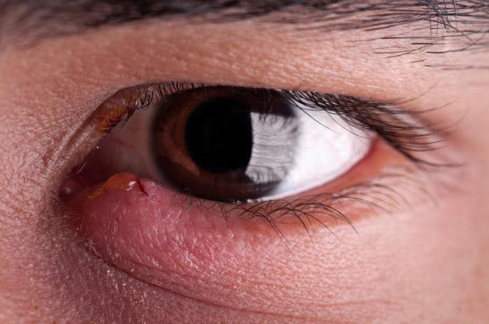 Чем лечить ячмень на верхнем веке глаза в домашних условиях 194