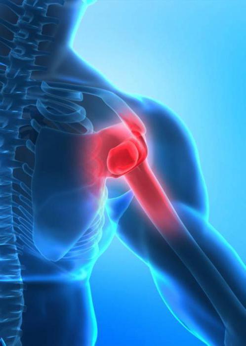 адгезивный капсулит плеча мкб 10