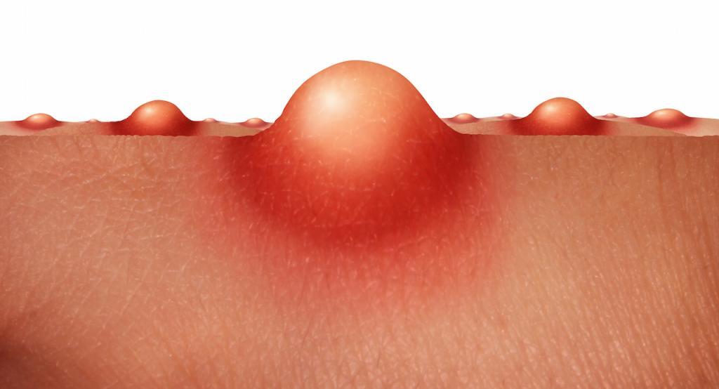 Гнойник на губе с наружной и внутренней стороны причины возникновения, лечение у ребенка и взрослого