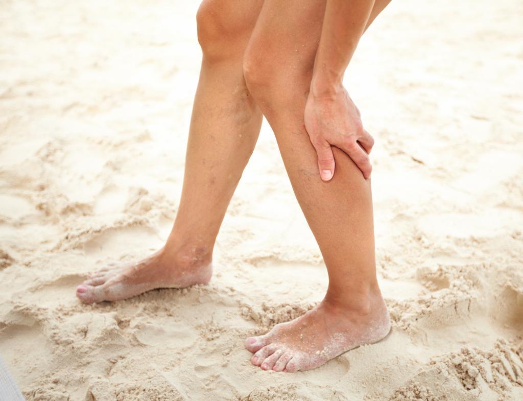 удаление вены на ноге при варикозе