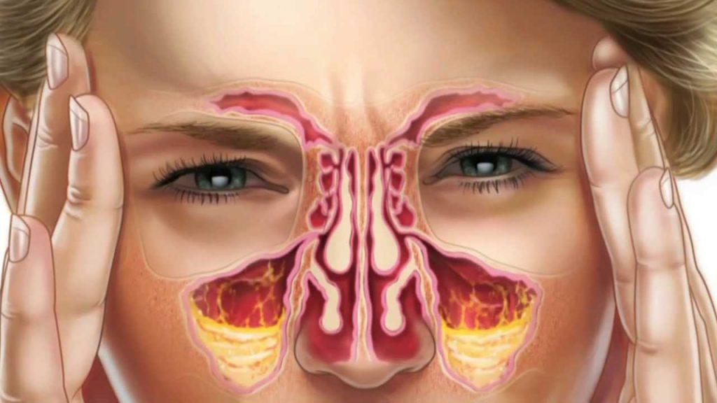 зумбафитнес гайморит картинка пазухи носа были сделаны последних