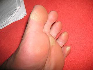 натоптыши на пальцах ног как избавиться мази салициловой