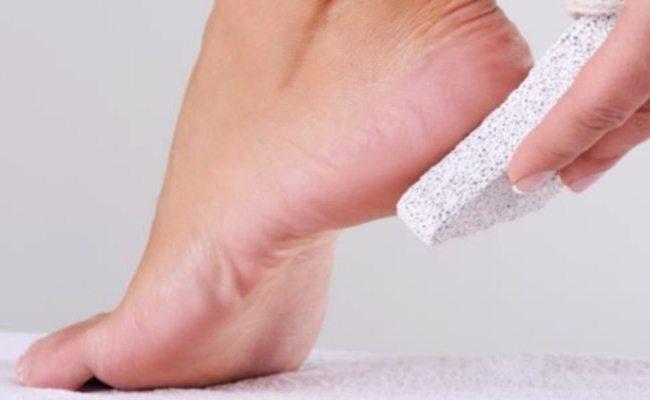 натоптыш на большом пальце ноги как избавиться